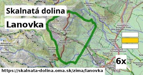lanovka v Skalnatá dolina