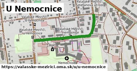 ilustrácia k U Nemocnice, Valašské Meziříčí - 419m